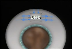 A small channel, or 'bleb' is created to allow fluid to drain from the eye. (See animation below.)